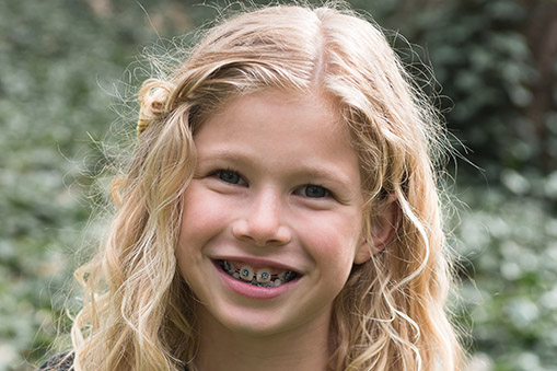 young girl with braces who was treated at Robinson Orthodontics